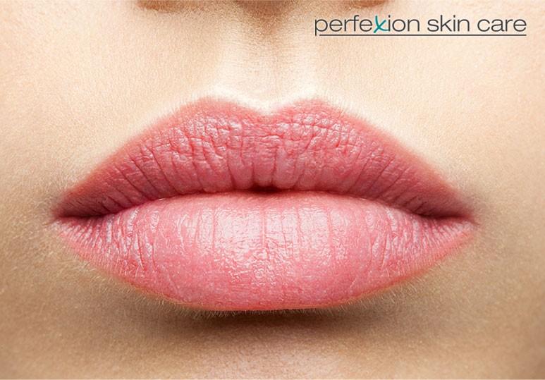 Calgary Lip Enhancement Treatments