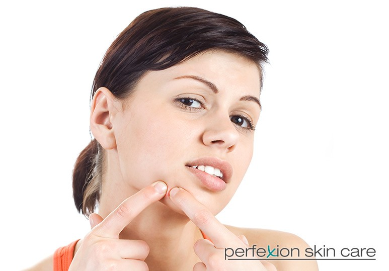 Should You Choose Microdermabrasion or Chemical Peels for Your Acne?