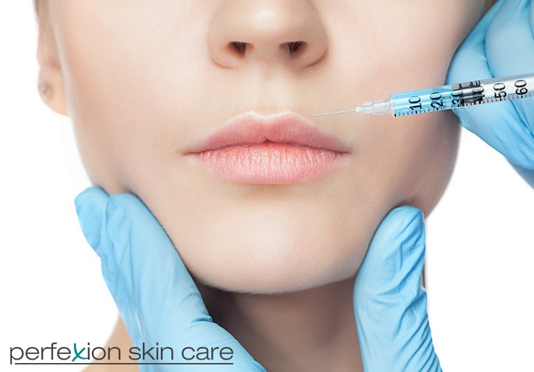 Calgary Juvederm Specialists